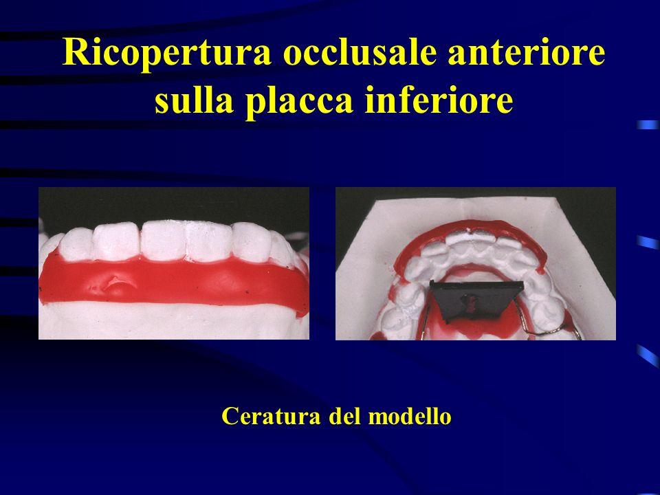 Ricopertura occlusale anteriore sulla placca inferiore