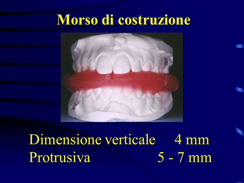 Morso di costruzione Dimensione verticale 4 mm Protrusiva 5 - 7 mm