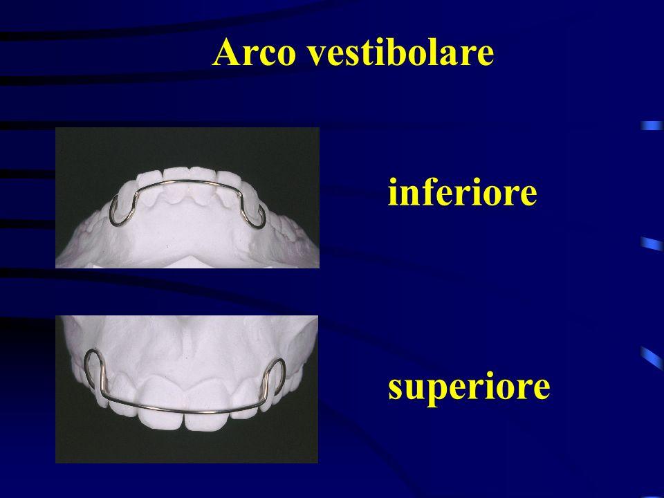 Arco vestibolare inferiore superiore