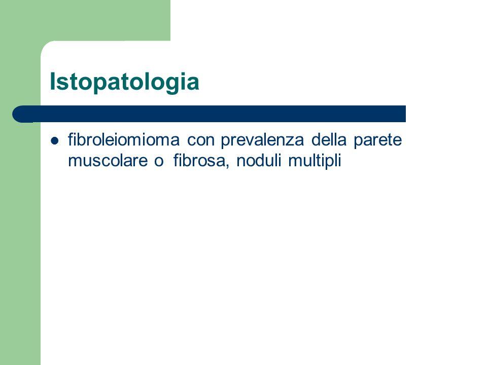 Istopatologia fibroleiomioma con prevalenza della parete muscolare o fibrosa, noduli multipli