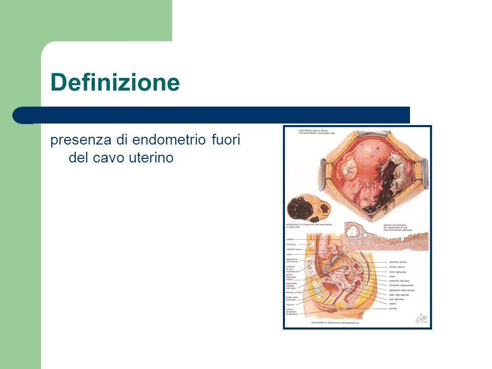 Definizione presenza di endometrio fuori del cavo uterino