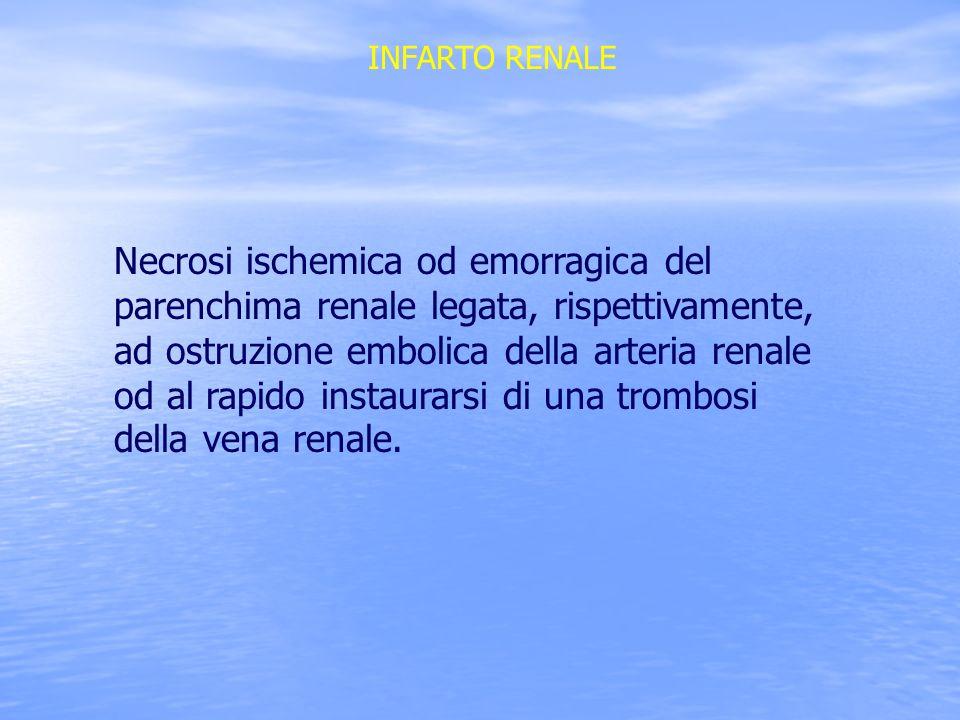 INFARTO RENALE