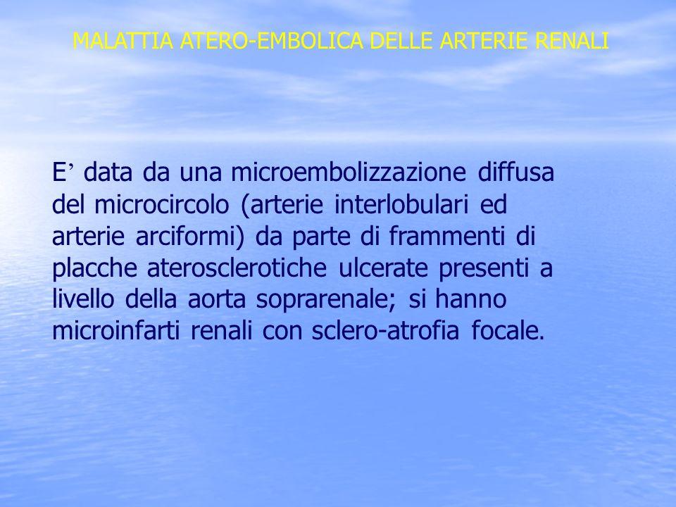MALATTIA ATERO-EMBOLICA DELLE ARTERIE RENALI