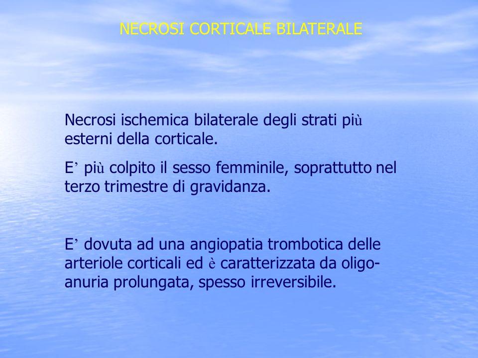 NECROSI CORTICALE BILATERALE