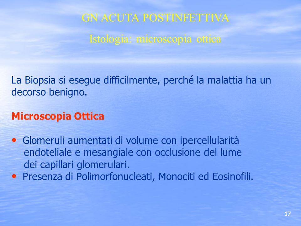 GN ACUTA POSTINFETTIVA Istologia: microscopia ottica