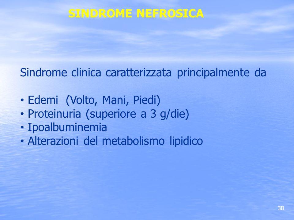 SINDROME NEFROSICASindrome clinica caratterizzata principalmente da. Edemi (Volto, Mani, Piedi) Proteinuria (superiore a 3 g/die)