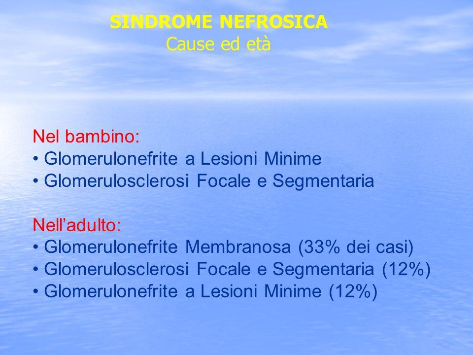 SINDROME NEFROSICA Cause ed età. Nel bambino: Glomerulonefrite a Lesioni Minime. Glomerulosclerosi Focale e Segmentaria.