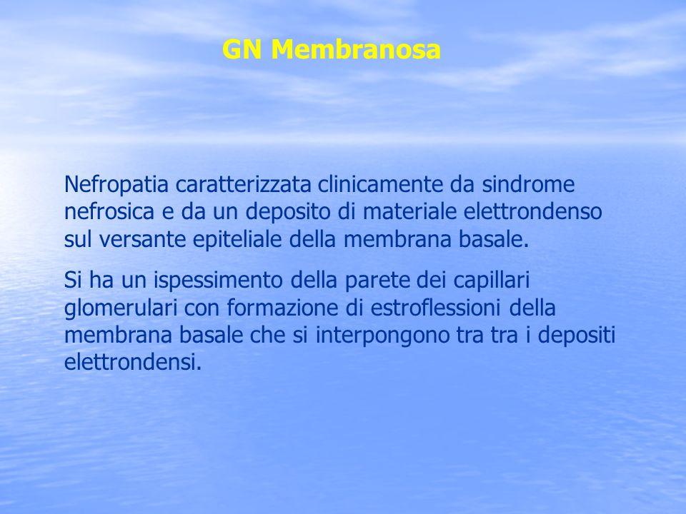 GN Membranosa