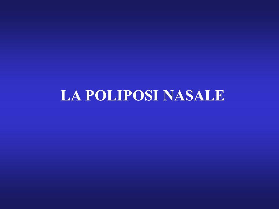 LA POLIPOSI NASALE