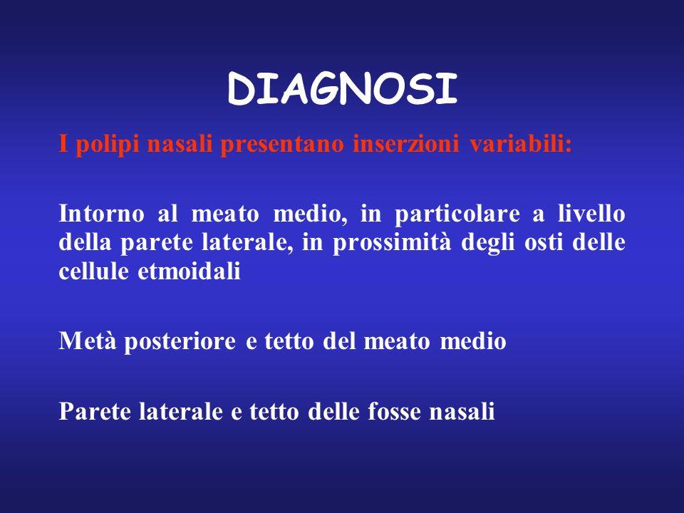 DIAGNOSI I polipi nasali presentano inserzioni variabili: