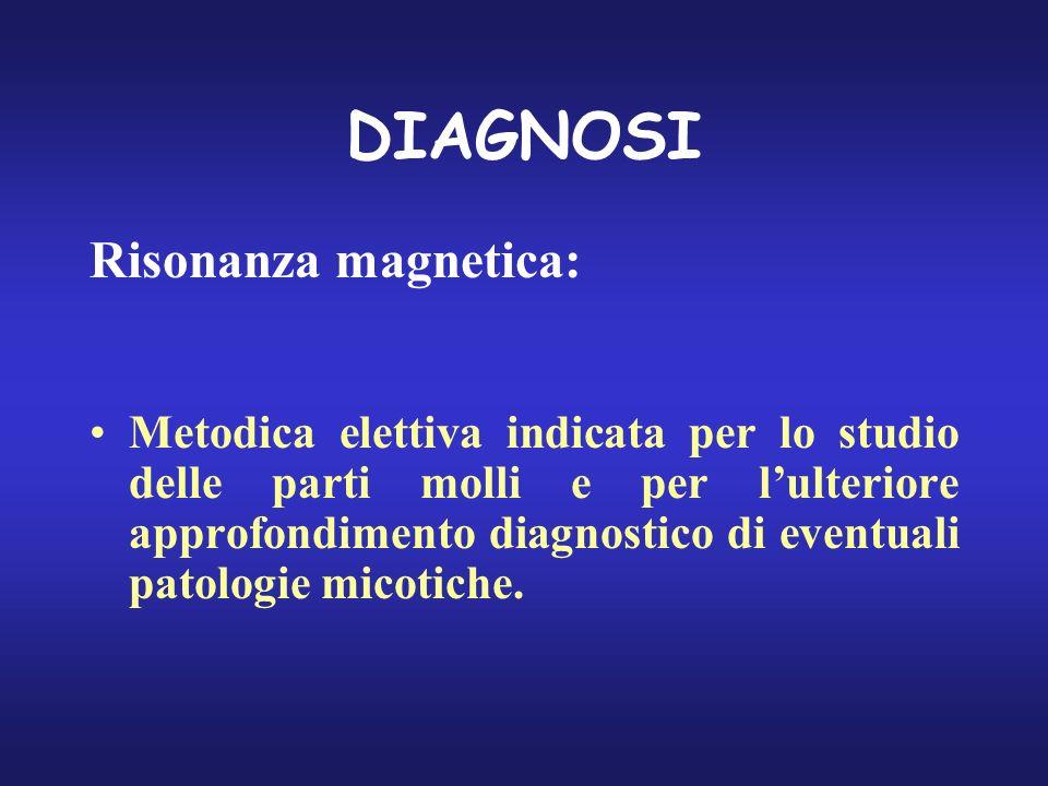 DIAGNOSI Risonanza magnetica: