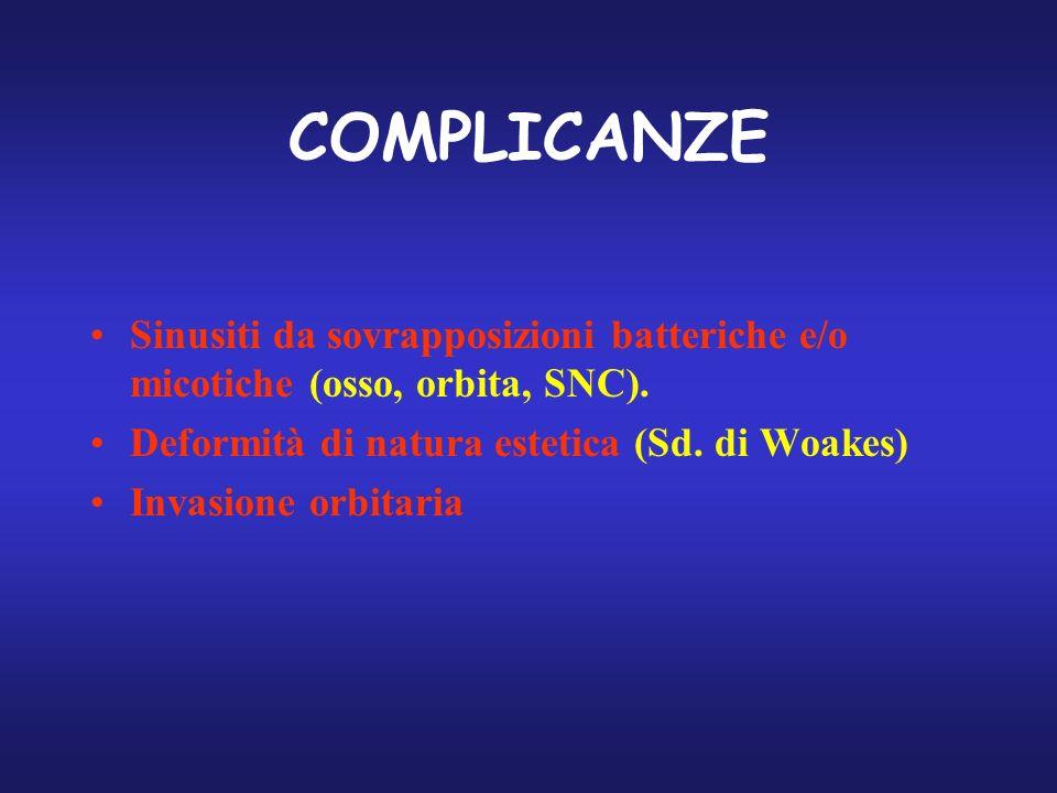 COMPLICANZE Sinusiti da sovrapposizioni batteriche e/o micotiche (osso, orbita, SNC). Deformità di natura estetica (Sd. di Woakes)