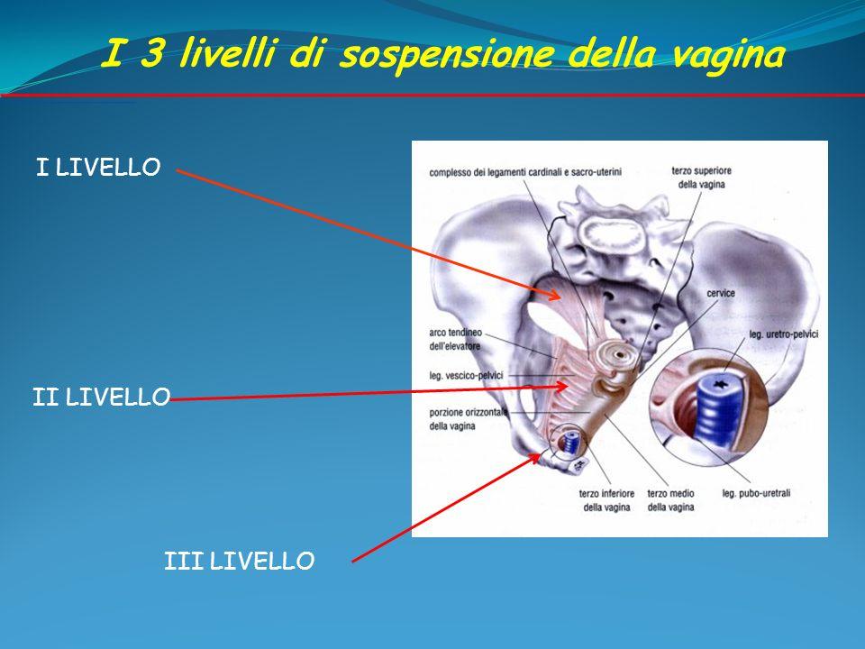 I 3 livelli di sospensione della vagina