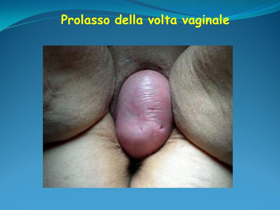 Prolasso della volta vaginale