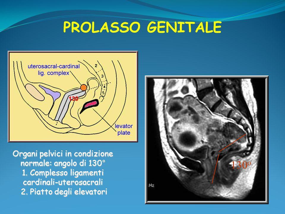 PROLASSO GENITALE Organi pelvici in condizione normale: angolo di 130° 1. Complesso ligamenti cardinali-uterosacrali.