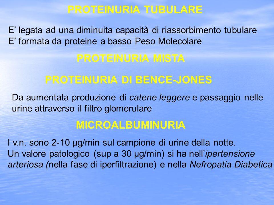 PROTEINURIA DI BENCE-JONES