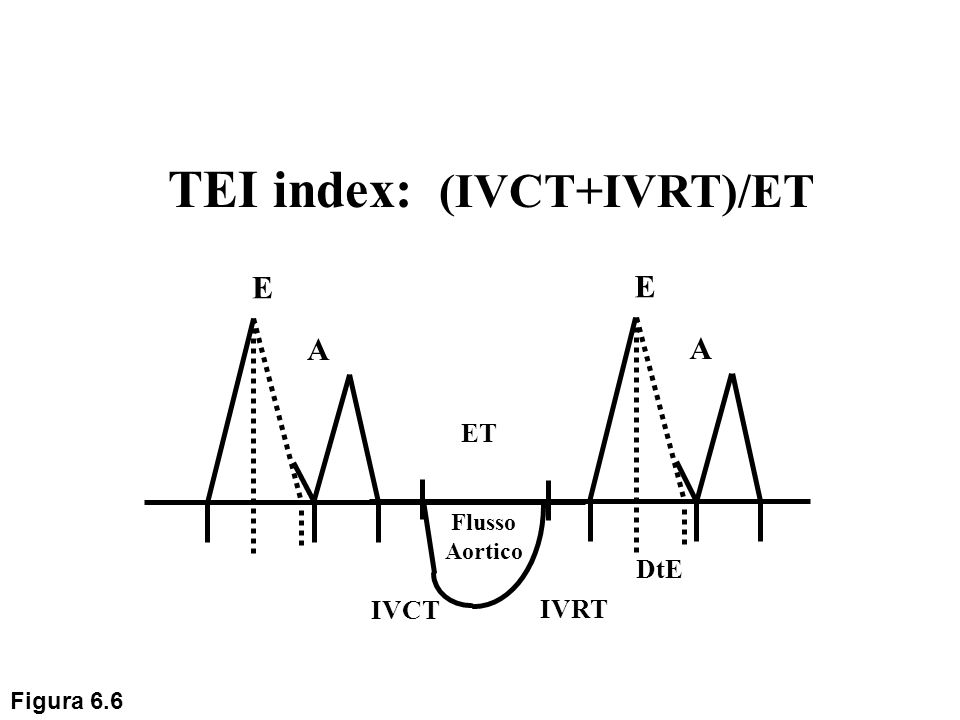 TEI index: (IVCT+IVRT)/ET