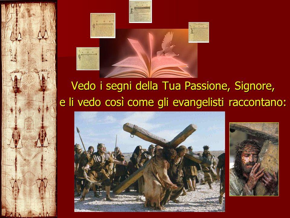 Vedo i segni della Tua Passione, Signore,