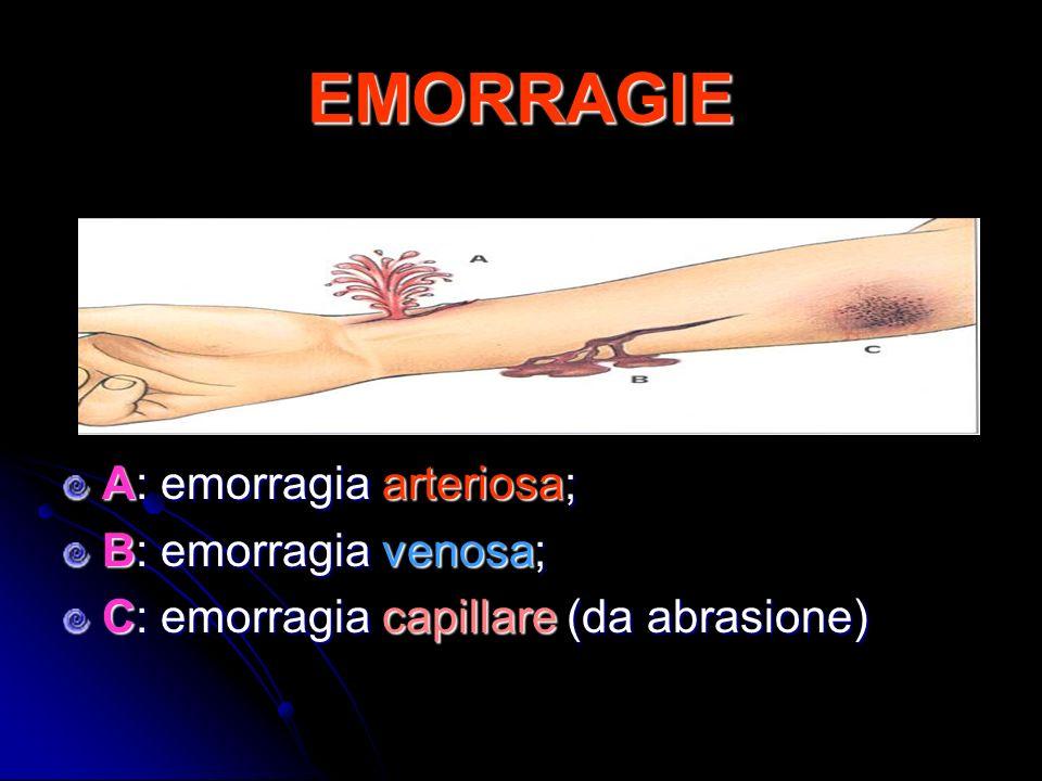 EMORRAGIE A: emorragia arteriosa; B: emorragia venosa;