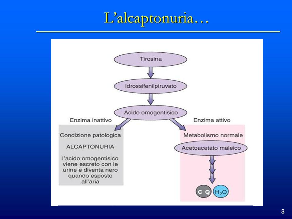 L'alcaptonuria… nbfdhòàhgàòfdòlhfàlòàgfòlàdsòlh