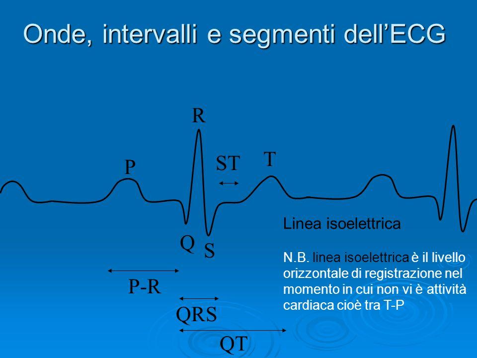 Onde, intervalli e segmenti dell'ECG