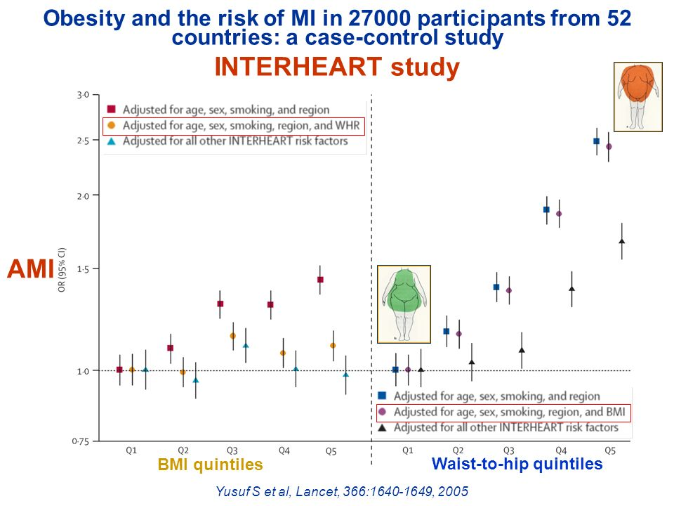 Obesity and the risk of MI in 27000 participants from 52 countries: a case-control study
