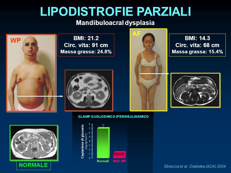 LIPODISTROFIE PARZIALI Mandibuloacral dysplasia
