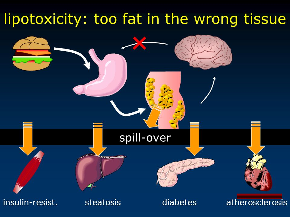 lipotoxicity: too fat in the wrong tissue