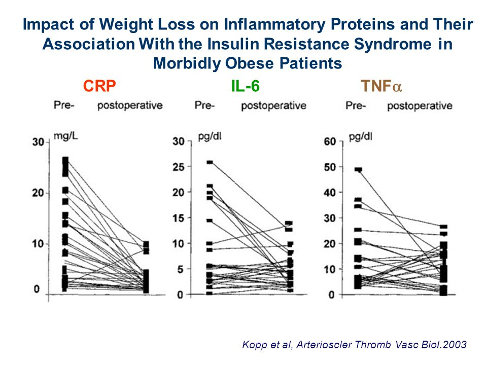Impact of Weight Loss on Inflammatory Proteins and Their