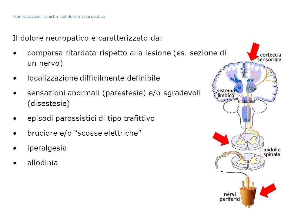 Il dolore neuropatico è caratterizzato da: