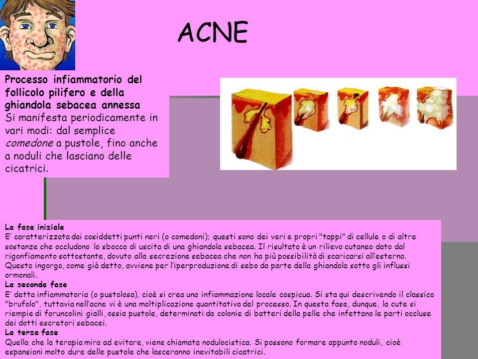 ACNE Processo infiammatorio del follicolo pilifero e della ghiandola sebacea annessa.