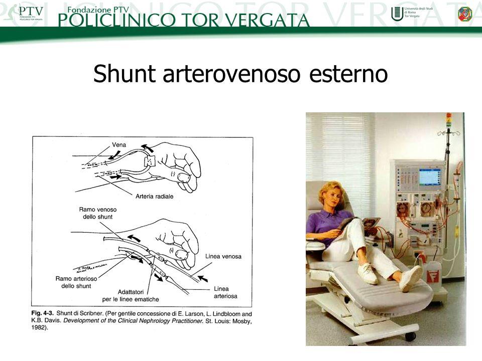 Shunt arterovenoso esterno