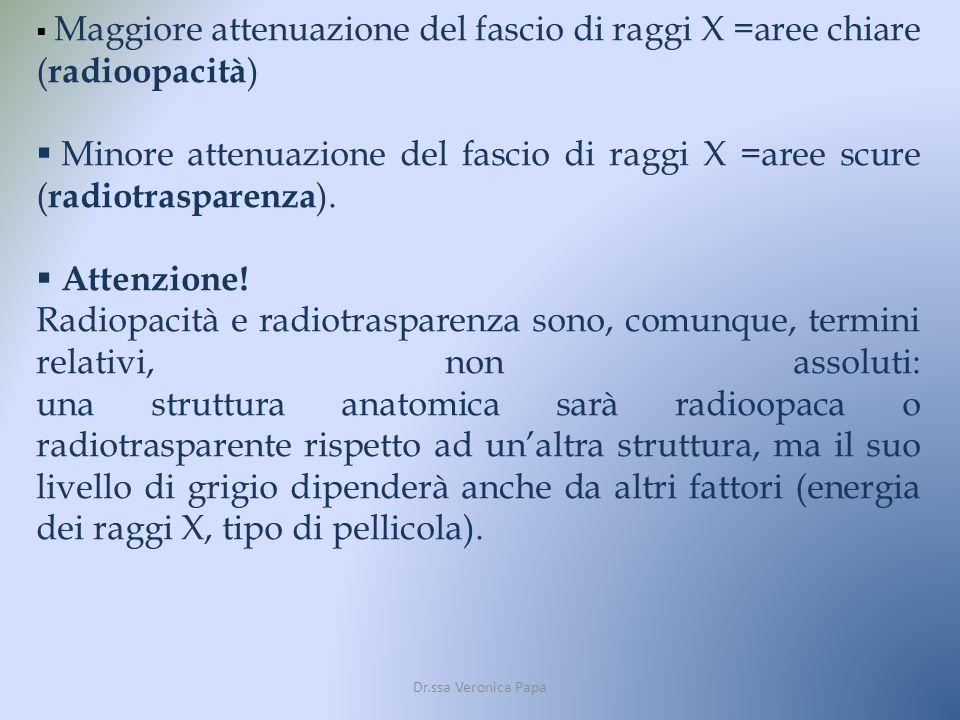 Maggiore attenuazione del fascio di raggi X =aree chiare (radioopacità)