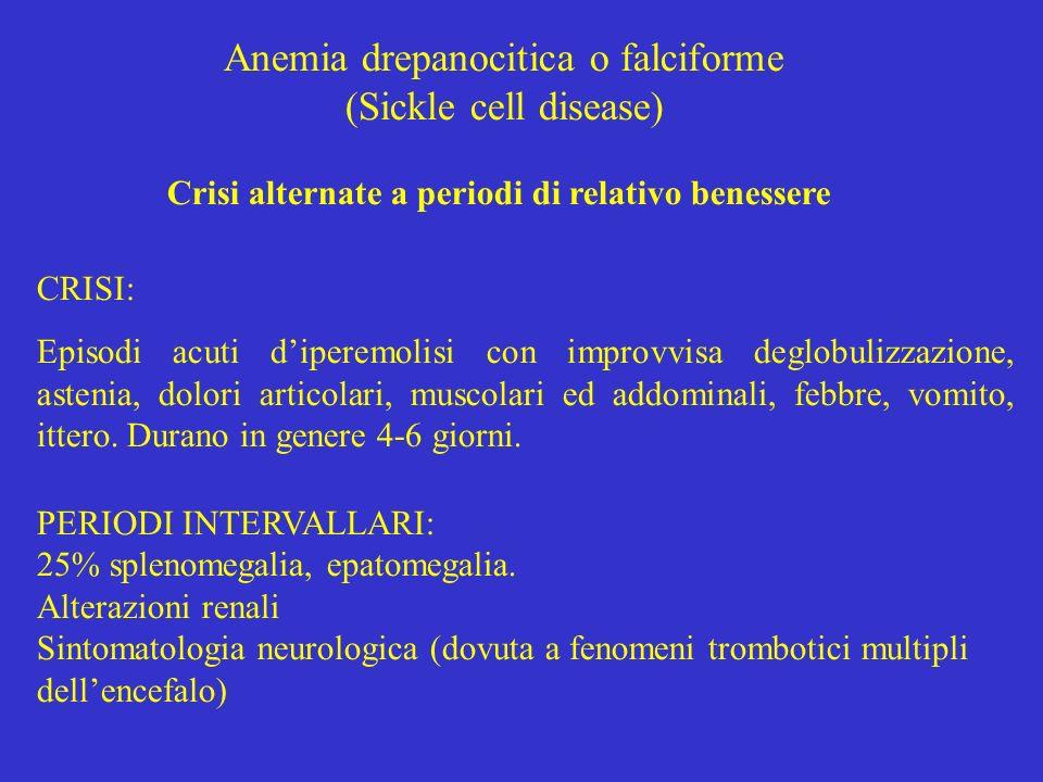 Anemia drepanocitica o falciforme