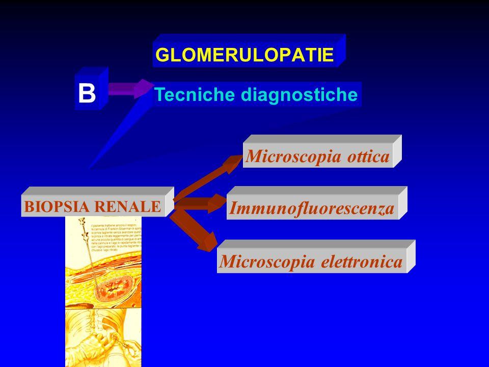 B GLOMERULOPATIE Tecniche diagnostiche Microscopia ottica