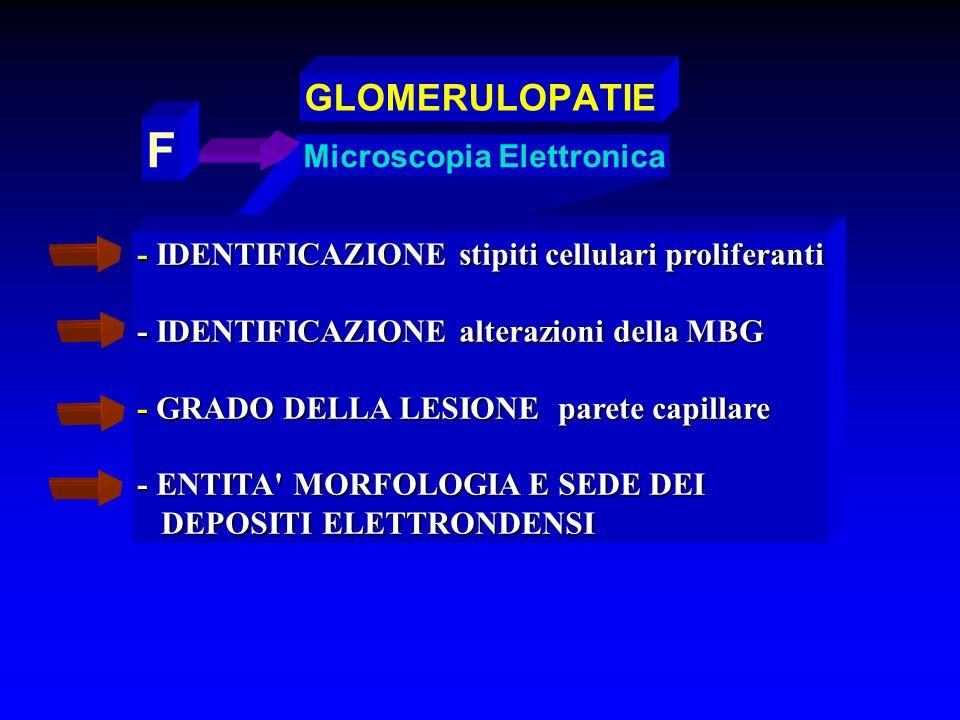 F GLOMERULOPATIE Microscopia Elettronica