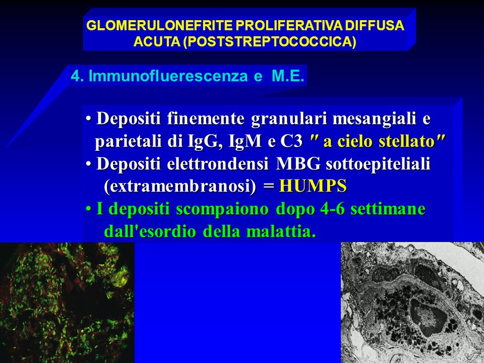 GLOMERULONEFRITE PROLIFERATIVA ACUTA DIFFUSA (POSTSTREPTOCOCCICA)