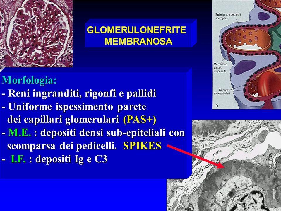 GLOMERULONEFRITE MEMBRANOSA