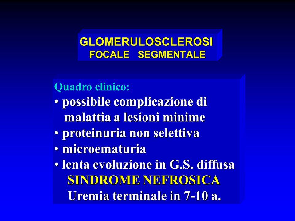 GLOMERULOSCLEROSI FOCALE SEGMENTALE