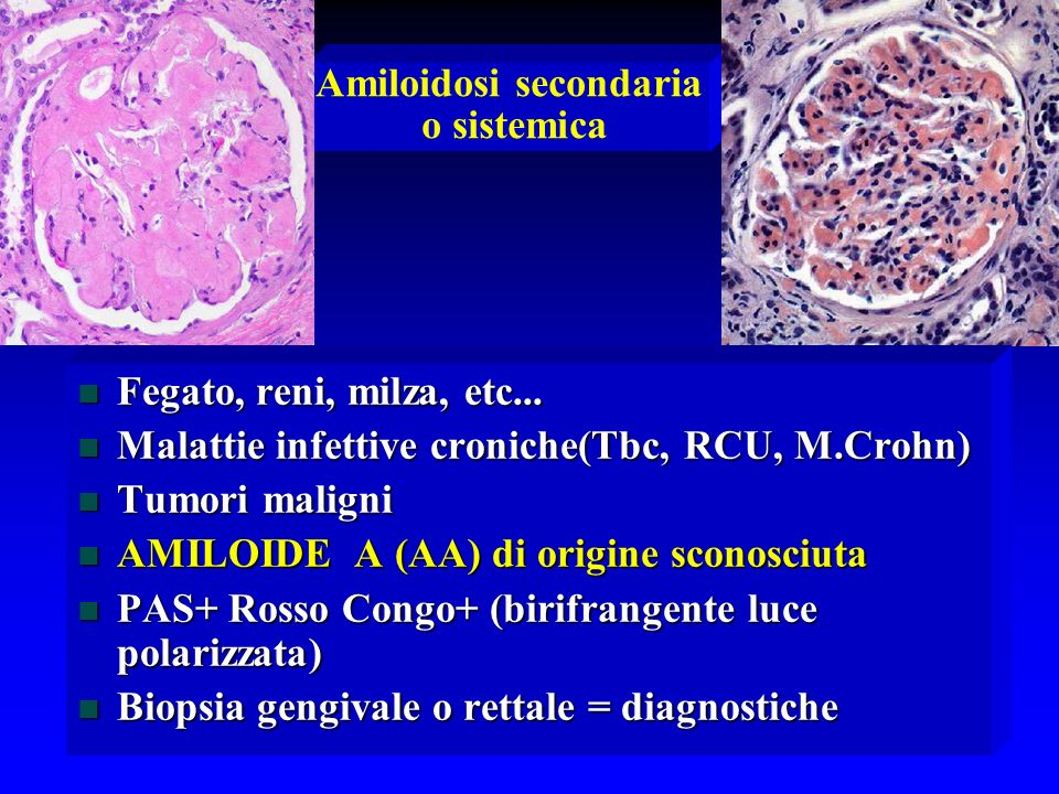 Amiloidosi secondaria o sistemica