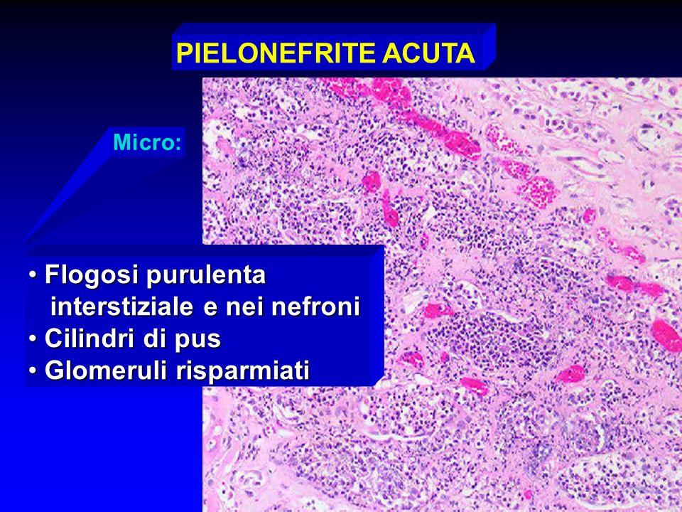 PIELONEFRITE ACUTA Flogosi purulenta interstiziale e nei nefroni