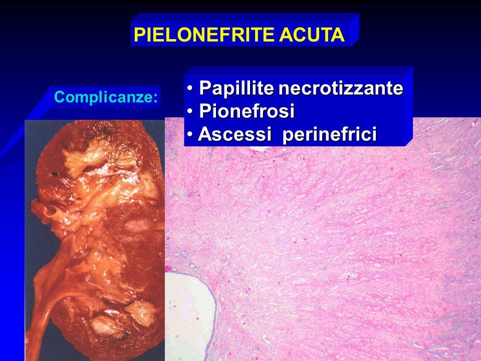 Papillite necrotizzante Pionefrosi Ascessi perinefrici