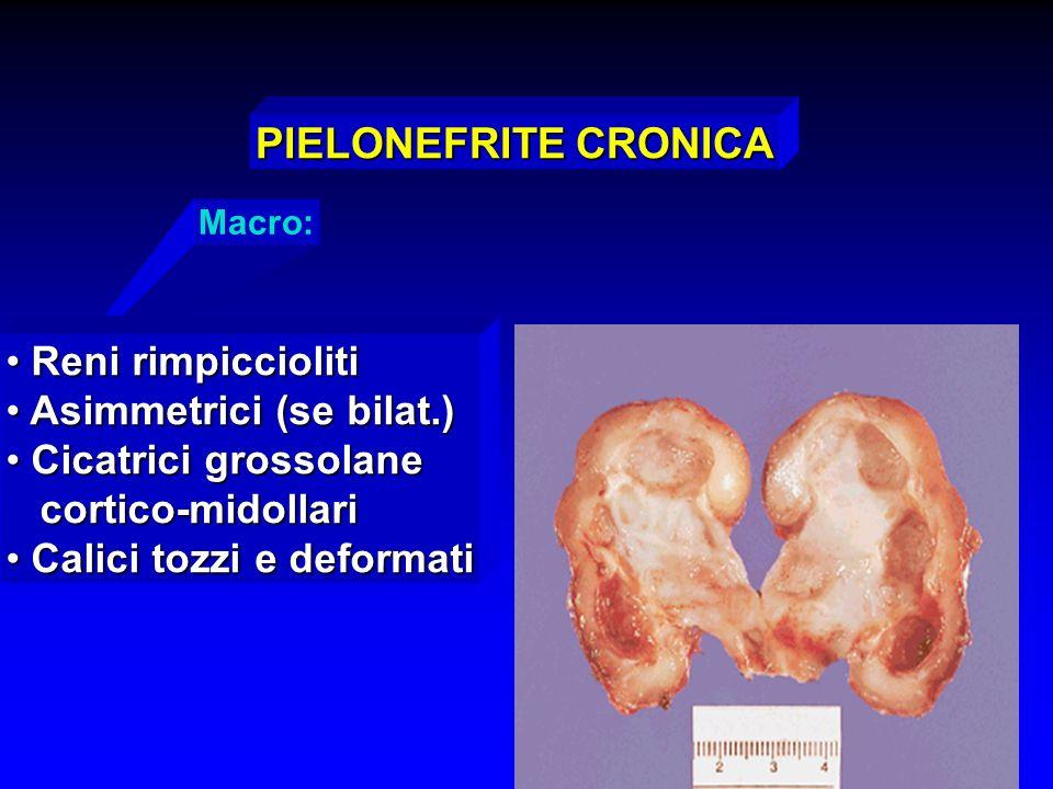 PIELONEFRITE CRONICA Reni rimpiccioliti Asimmetrici (se bilat.)