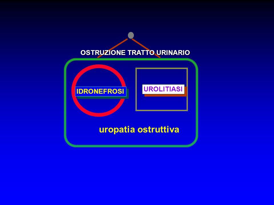 OSTRUZIONE TRATTO URINARIO