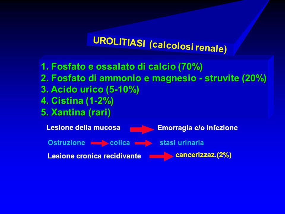 UROLITIASI (calcolosi renale)