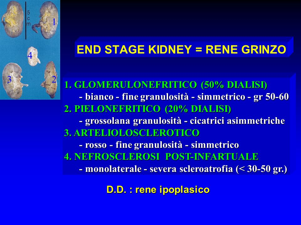 END STAGE KIDNEY = RENE GRINZO