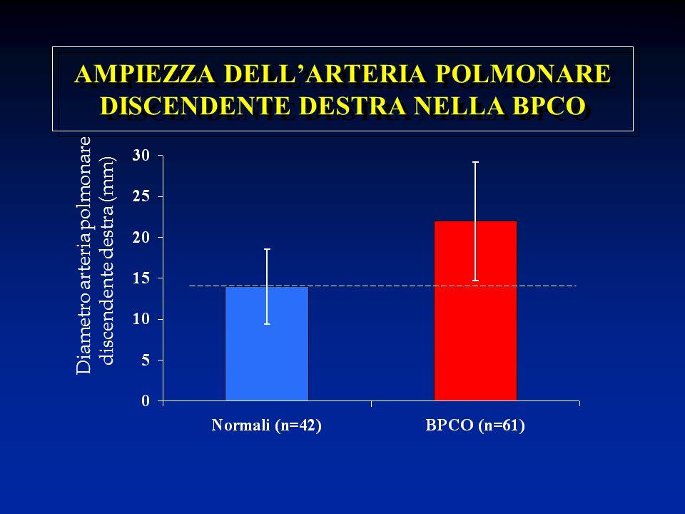 AMPIEZZA DELL'ARTERIA POLMONARE DISCENDENTE DESTRA NELLA BPCO