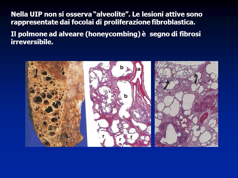 Nella UIP non si osserva alveolite
