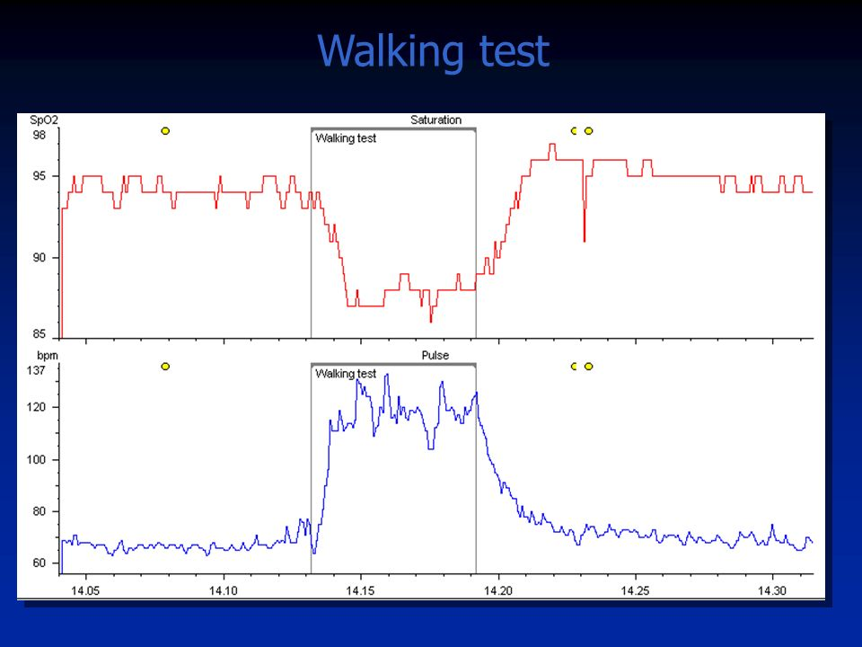 Walking test 6min WT in un COPD