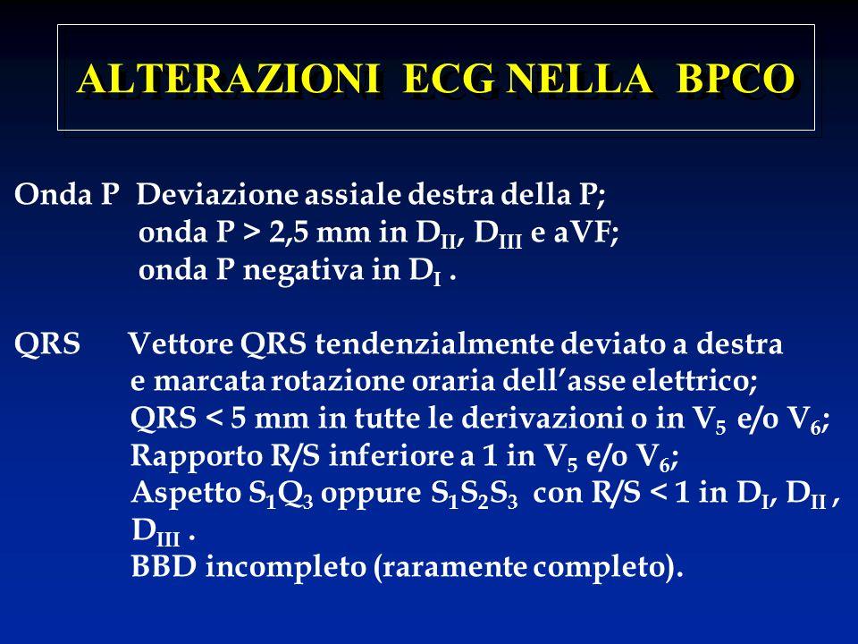 ALTERAZIONI ECG NELLA BPCO